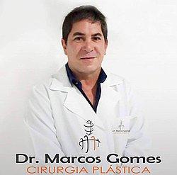 Dr. MARCOS - Cirurgião Plástico - Agendar Consulta